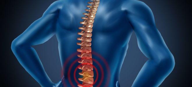 Что такое спондилоартроз пояснично-крестцового отдела позвоночника, лечение заболевания