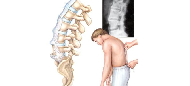 Что такое спондилолистез? Симптомы и лечение смещения позвонков