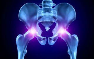 Симптомы и лечение остеохондроза тазобедренного сустава
