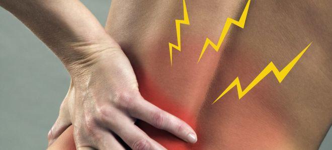 Что такое острый хондроз, его симптомы и лечение