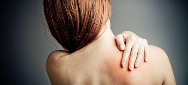 Что такое постгерпетическая невралгия, симптомы и лечение заболевания