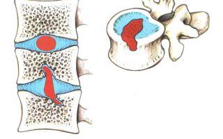 Правильное лечение грыжи Шморля поясничного отдела позвоночника