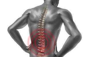 Симптомы и лечение деформирующего спондилеза