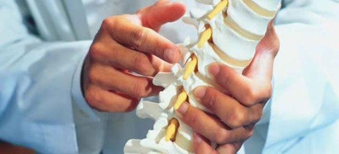 Лечение деформирующего спондилоартроза поясничного отдела