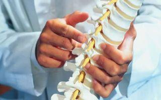 Что такое спондилоартроз грудного отдела позвоночника, симптомы и лечение