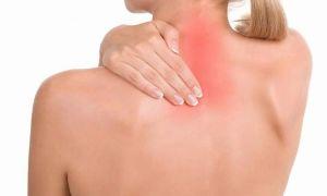 Что такое цервикалгия, симптомы и лечение синдрома