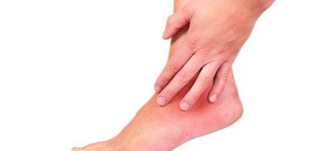Причины болей в ногах и руках при остеохондрозе и их лечение