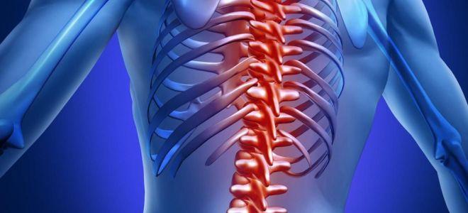 Что такое хондроз: признаки, симптомы, причины и лечение заболевания