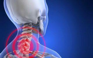 Симптомы и лечение нарушения мозгового кровообращения при шейном остеохондрозе
