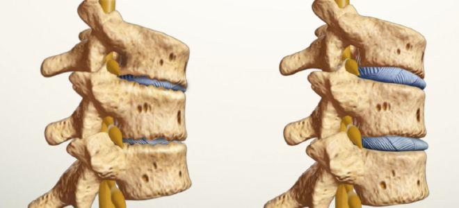 Что такое спондилоартроз, симптомы и лечение заболевания