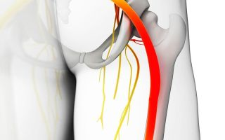 Что такое ишиас: симптомы и лечение невралгии седалищного нерва