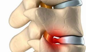Что такое ДДЗП, причины появления, симптомы в шейном и поясничном отделе