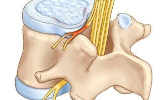 Симптомы и лечение корешкового синдрома (защемления нерва) поясничного отдела