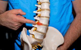 Что такое парамедианная грыжа диска l5 s1 и как ее лечить