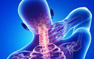 Симптомы и лечение синдрома позвоночной артерии при шейном остеохондрозе