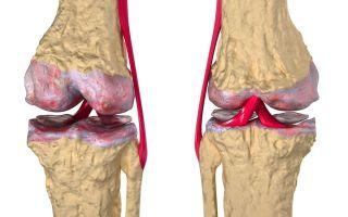 Список лучших хондропротекторов при артрозе коленного сустава