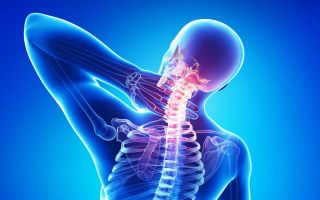 Все о шейном хондрозе: причины, симптомы, лечение