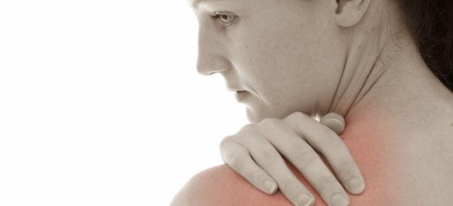 Симптомы и лечение невралгии плечевого нерва