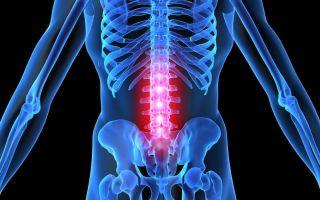 Симптомы и лечение остеохондроз 2 степени поясничного отдела позвоночника