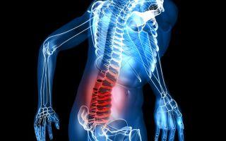 Симптомы и лечение деформирующего спондилеза поясничного отдела позвоночника