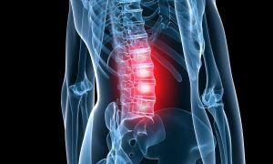 Симптомы и лечение остеохондроза крестцового отдела позвоночника