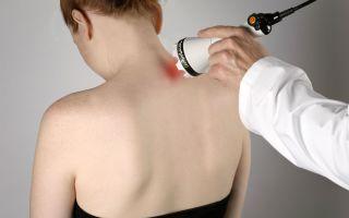 Физиопроцедуры при остеохондрозе шейного отдела