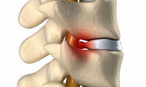 Как проводится операция по удалению грыжи позвоночника, как восстановиться после операции