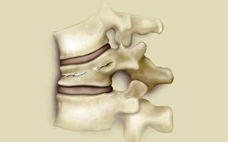 Первые признаки деформирующего спондилоартроза и способы лечения