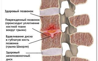 Что же такое грыжа Шморля позвоночника и как ее вылечить