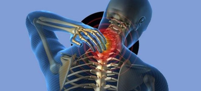 Причины, симптомы и лечение смещения шейных позвонков