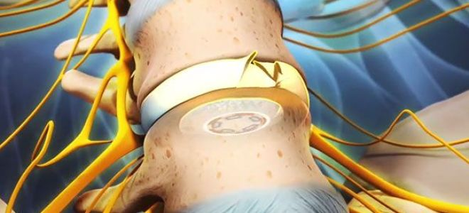 Симптомы и лечение межпозвонковый (межпозвоночного) остеохондроза