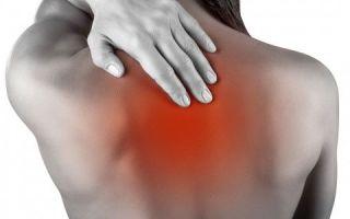 Симптомы и лечения остеохондроза грудного отдела с корешковым синдромом