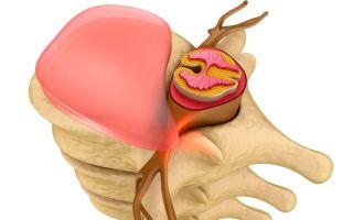 Симптомы и лечение грыжи поясничного отдела позвоночника