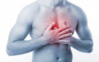 Как снять острую боль при межреберной невралгии