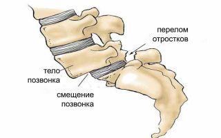 Симптомы и лечение смещения позвонков поясничного отдела