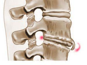 Краевые костные разрастания при спондилезе