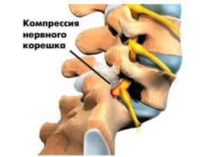 Компрессия нервного корешка
