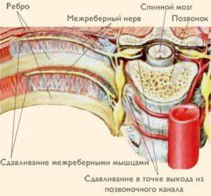 Межреберный нерв, сдавленный межреберными мышцами