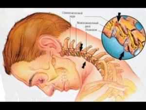 Спондилоартроз шейного отдела позвоночника