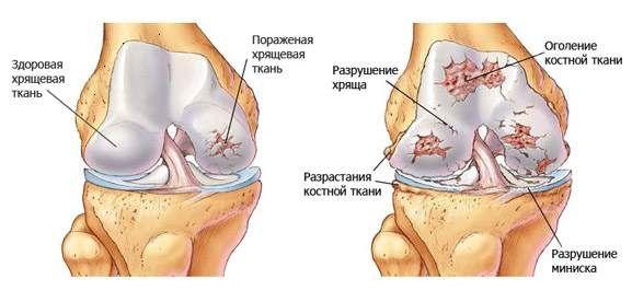 Изображение - Хондропротекторы при гонартрозе коленного сустава artroze_kolennogo_sustava_1