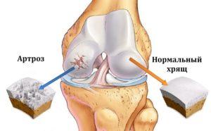 Изображение - Хондропротекторы при гонартрозе коленного сустава artroze_kolennogo_sustava_2-300x186