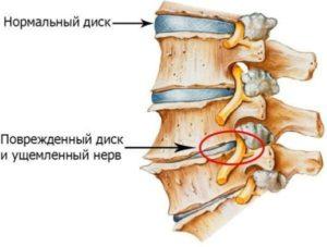 Давление на нерв поврежденным позвоночным диском