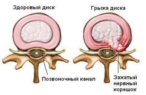 Здоровый диск и грыжа диска