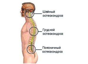 Хондроз грудного отдела позвоночника: симптомы и лечение. Как и чем лечить грудной хондроз в домашних условиях у женщин
