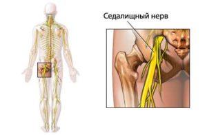 Седалищный нерв