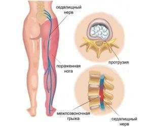 Ишиас: невралгия седалищного нерва
