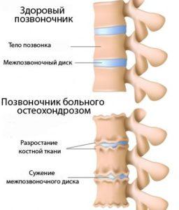 Сравнение здорового и больного остеохондрозом позвоночников