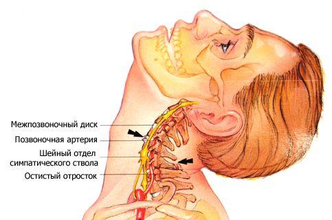 Лечение шейного остеохондроза медикаментозно