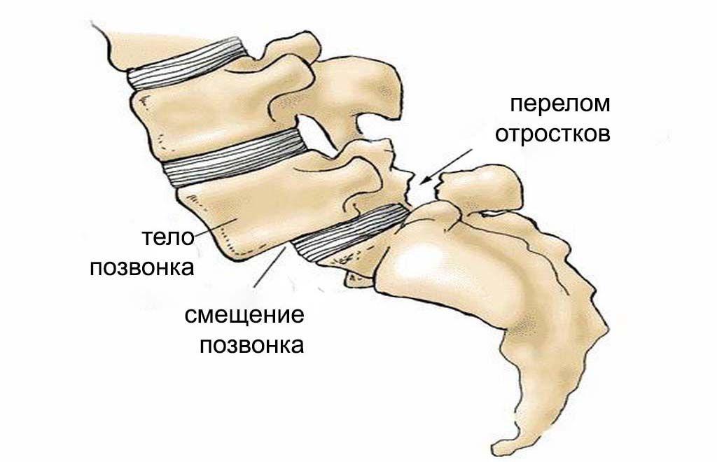Спондилолистез