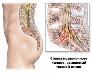 Стеноз позвоночного канала, вызванный грыжей диска